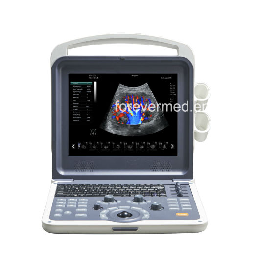 Diagnostic System Portable Ultrasound Digital Color Doppler for Gynecologist pictures & photos