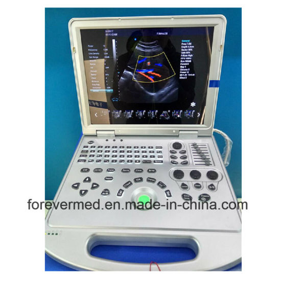 Africa Popular Medical Ultrasonic Digital B/W Ultrasound Scanner pictures & photos
