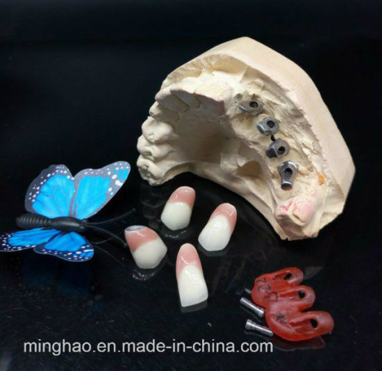 Pfm Non-Precious Implant Crown with Gingival Pink Ceramic From Shenzhen Minghao Dental Lab pictures & photos