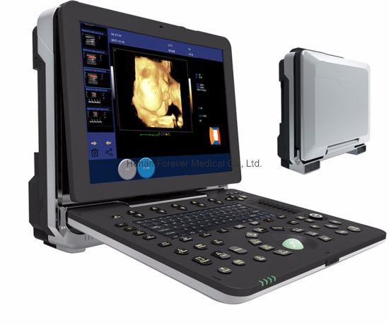 Medical Product Portable USG Digital Ultrasound Scanner with Cardiac Probe