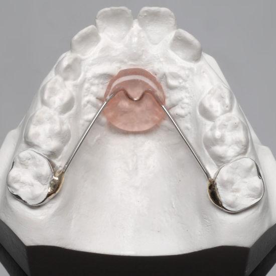 Nance Holding Appliance (NHA) /Orthodontic Retainer
