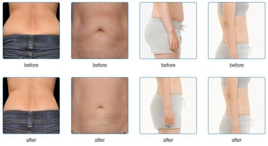 Three Handles Coolsculpting Body Fat Freezing Cryolipolysis Vacuum Liposuction Machine pictures & photos