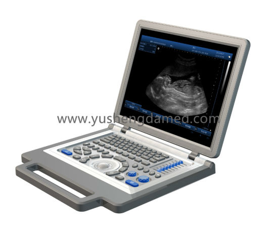 Full Digital Laptop Ultrasound Machine Ysd4300 pictures & photos