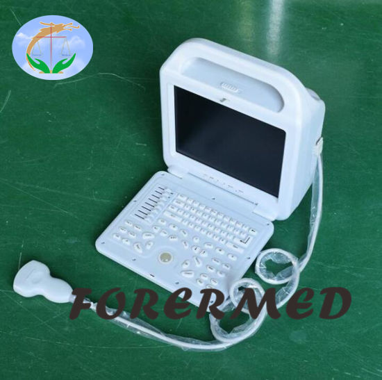 Cheap Price Portable B/W Ultrasound Popular in Africa pictures & photos