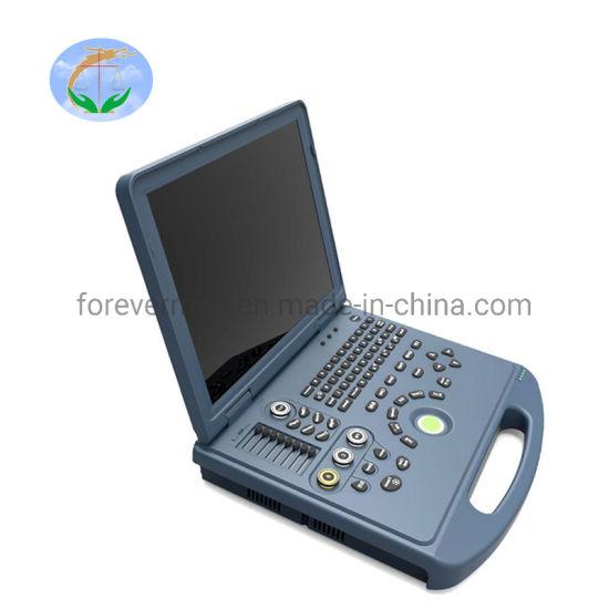 Diagnosis Equipment Medical Laptop Ultrasound 4D Color Doppler
