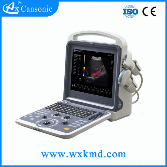 Portable Color Douppler Ultrasound Scanner pictures & photos