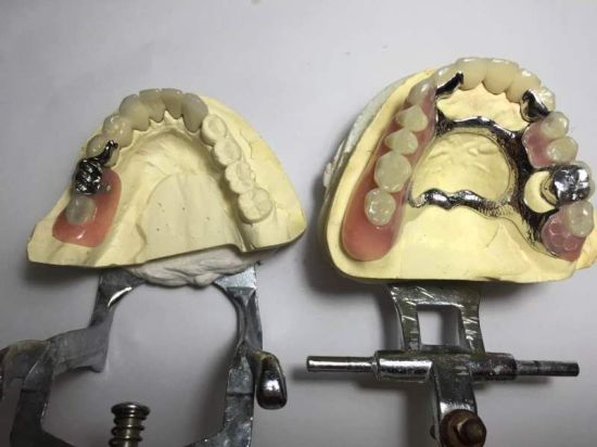 Telescope Crowns Finish with Cast Partial Denture Made in China Dental Lab pictures & photos