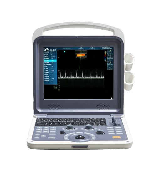 Color Doppler Ultrasound Diagnostic System pictures & photos