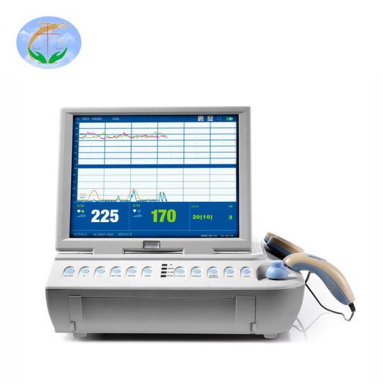 FM-V2.6 Medical Device Color Display Fetal Doppler Baby Heart Rate Fetal Monitor