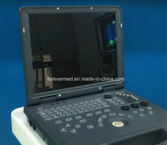 3D Laptop Color Doppler Ultrasound Scanner Diagnostic Equipment pictures & photos