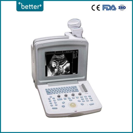 Medical Equipment Full Digital Portable B/W Ultrasound Scanner for Veterinary Use
