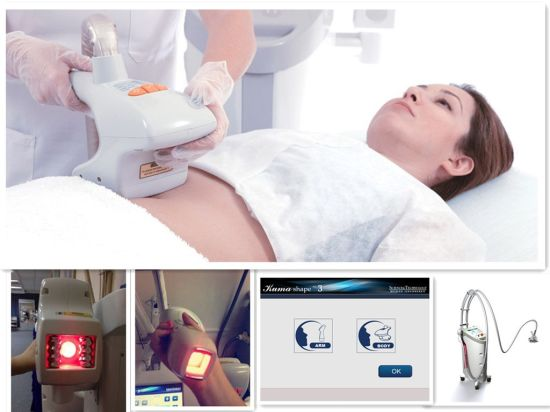 Kuma Shape Skin Tight and Cellulite Removal Message Machine Shape and Slimming pictures & photos