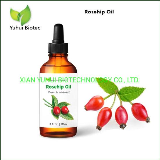 Best Natural Rosehip Oil for Face in Bulk for Wholesale