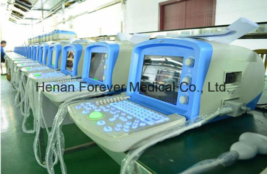 PC Based Factory Price Portable Ultrasound Equipment (YJ-U100A) pictures & photos