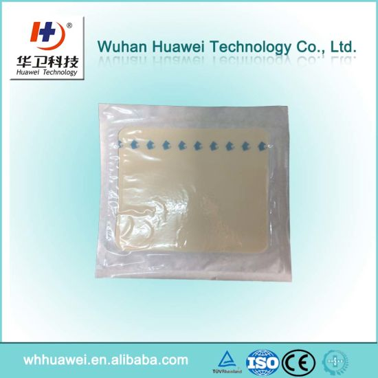 Adhesive Sterile Minor Burns Treatment Medical Hydrogel Dressing with Border