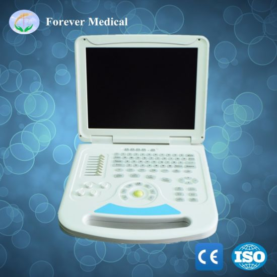 Full-Digital Trolley Color Doppler Diagnosis Ultrasound Scanner pictures & photos