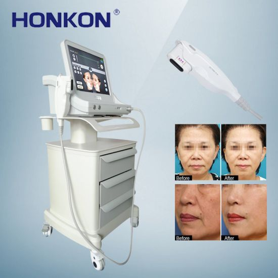 High Quality Ultrasound Face Lift Skin Tighten Beauty Salon Equipment