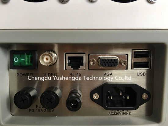 Full Digital Portable Ce/FDA Approved Diagnostic Hospital Ultrasound Scanner pictures & photos