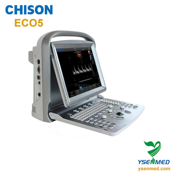 Hospital Medical Portable 2D Color Doppler Ultrasound Chison Eco5 pictures & photos