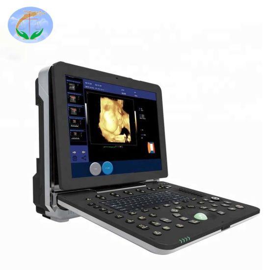 Medical Diagnostic System 4D Fetal Doppler Ultrasound Scanner