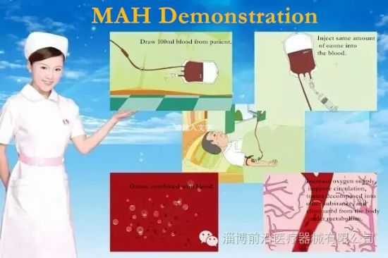 China Medical Ozone Generator for Major Autohemotherapy as