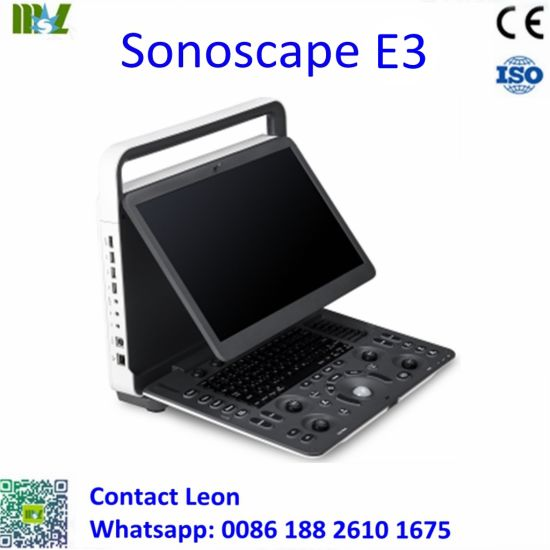 Sonoscape E3 Laptop Ultrasound Scanner Msk S8 Upgrade China Factory pictures & photos