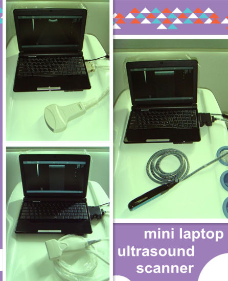 USB Mini Portable Ultrasound Scanner pictures & photos