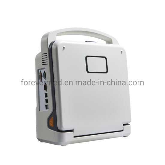 Ce Approved Medical Portable 4D Color Doppler Ultrasound Scanner pictures & photos