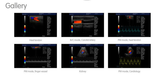 Factory Price Medical Equipment Color Doppler for Rural Clinic pictures & photos
