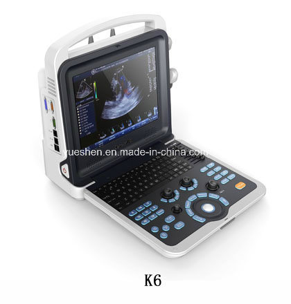 Medical Hospital Trolley and Portable 3D/4D Olor Doppler Ultrasound pictures & photos