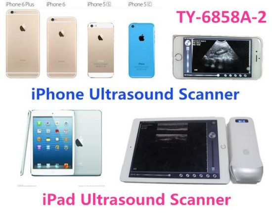 Ce Quality Home Use Portable Ultrasound Diagnosis Equipment pictures & photos