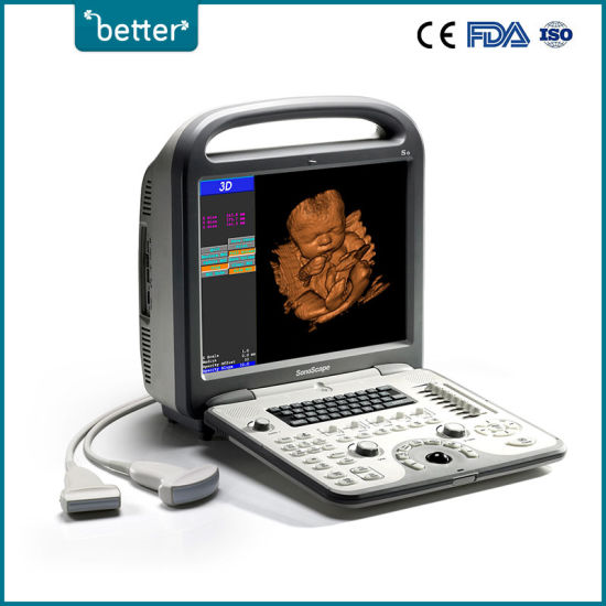 China Hospital Equipment Ultrasound/Ultrasonic Diagnostic Scanner