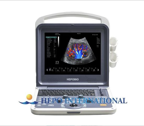 Medical Diagnosis Equipment Portable Ultrasound Scanner pictures & photos