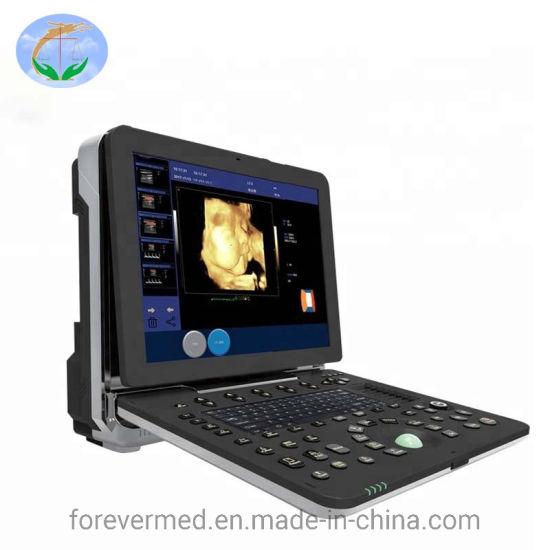 New Type Medical 3D/4D Color Doppler Portable Ultrasound Scanner