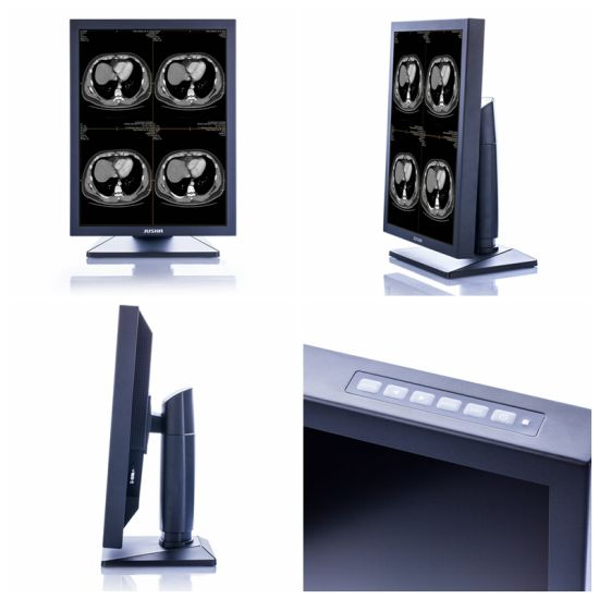 Ce Approved Diagnostic LCD Monitor for X Ray Medical Equipment pictures & photos
