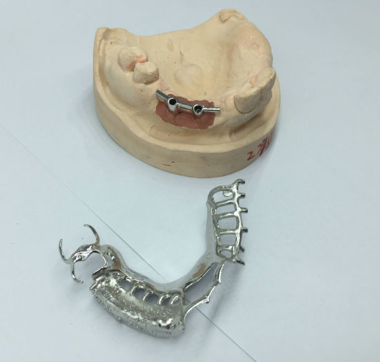 Hader Bar Denture/Preci-Horix Attachments/Implant Bar Combo Cast Framwork pictures & photos