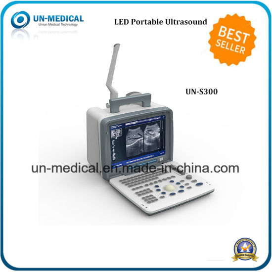 12.1 Inch Full Digital LED Portable Ultrasound for Medical Equipment pictures & photos