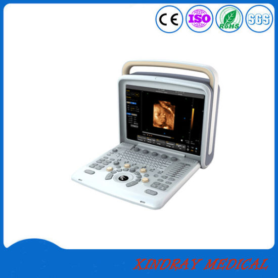 Factory Price Medical Equipment Color Doppler Portable Digital Ultrasound pictures & photos