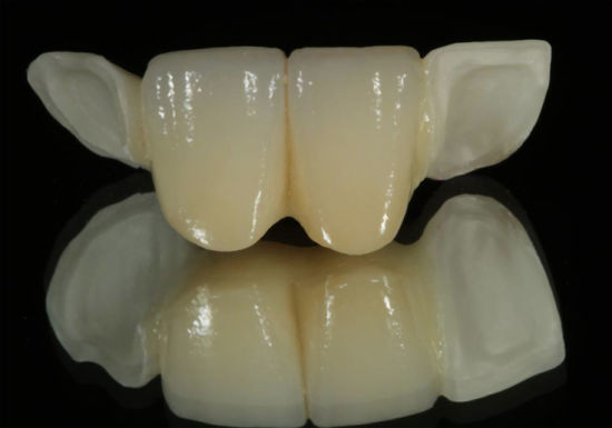 Dental All Ceramic Maryland Bridge with Porcelain Wings From Shenzhen Minghao Dental Lab