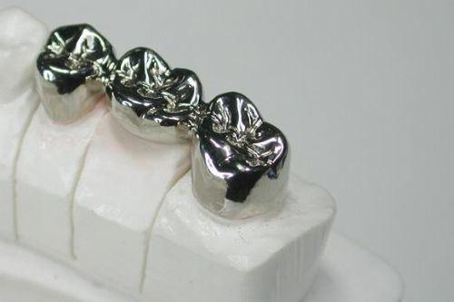 Dental Products Full Metal Crown Steel Teeth From Shenzhen Minghao Dental Lab