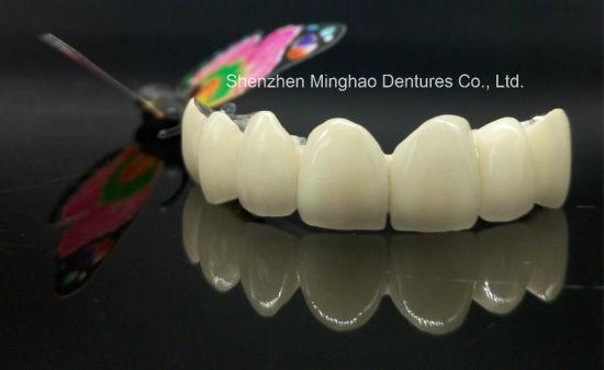 Denture Manufature Pfm Non-Precious Crown From Shenzhen Minghao Dental Lab