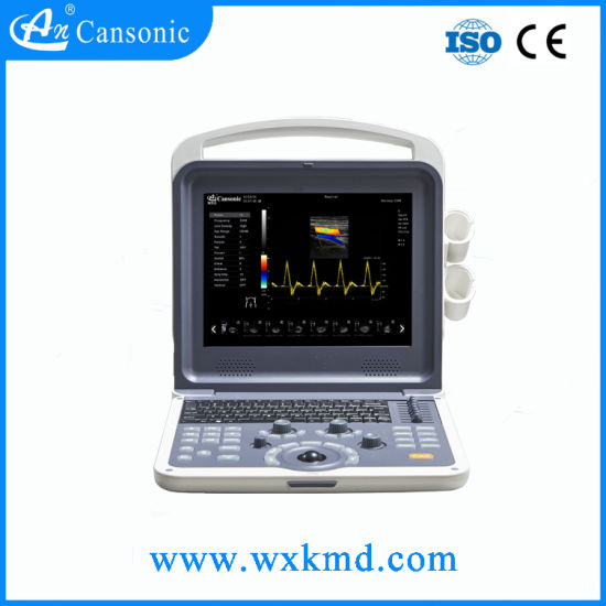 Supply Portable Ultrasound System K2 pictures & photos