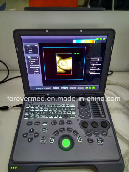 3D Laptop Color Doppler Ultrasound Portable Scanner Diagnostic Equipment pictures & photos