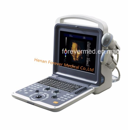 New Echo Color Doppler Ultrasounds Scanner Yj-U60plus pictures & photos