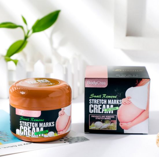 Snail Remove Stretch Marks Cream Beauty Product