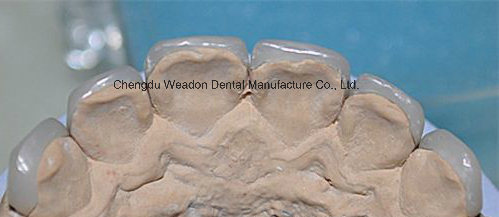 Super Thinest Veneer for Clinic From Service Center pictures & photos