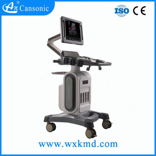 Trolley Color Doppler Ultrasound Scanner for Hospital Use K10
