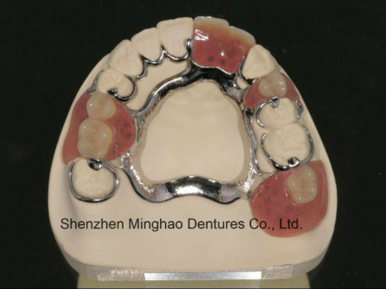 Denture Manufature Cast Partial Denture with Clear Clasp From Shenzhen Minghao Dental Lab