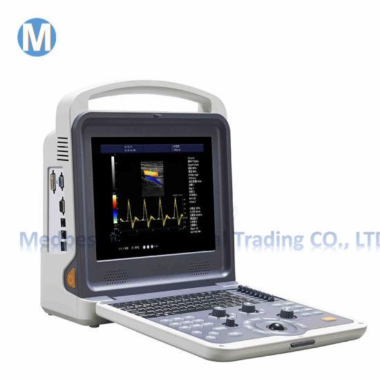 Echo Color Doppler 3D Function Laptop/Notebook Trade Assurance Ultrasound