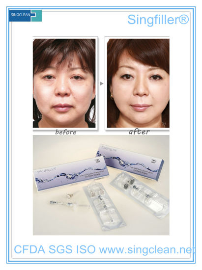 Singfiller Cross-Linked Bd 1.0prtc Syringe Anti-Wrinkles Facial Hyaluronic Acid Injection pictures & photos